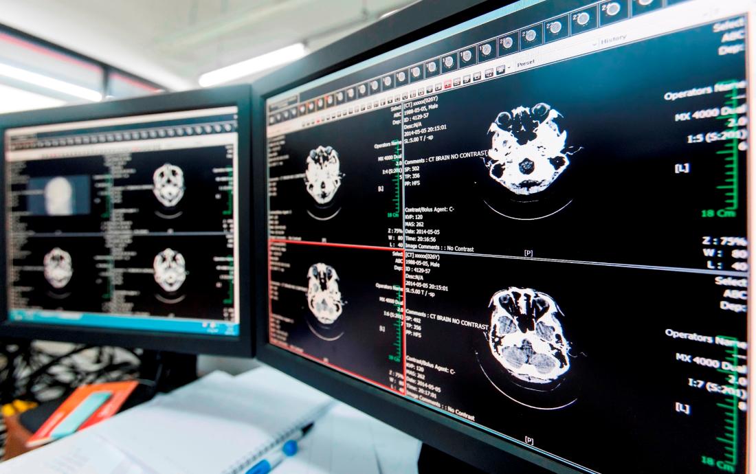 의료영상저장전송시스템 유럽 인증 획득한 티플러스, 블록체인 솔루션 개발 추진